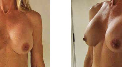 Uti's Breast Augmentation