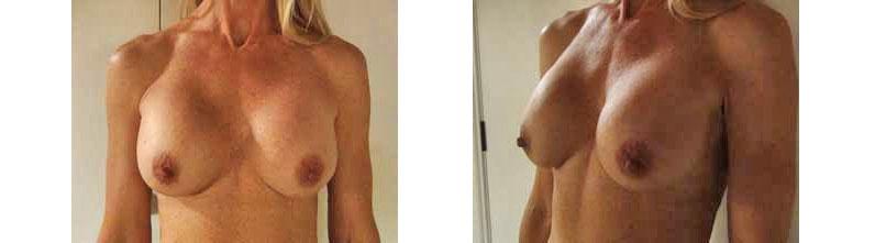 Uti – Breast Augmentation – Real Story