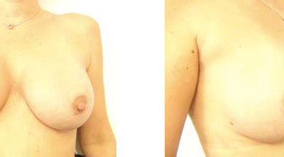 Yvette's Breast Augmentation