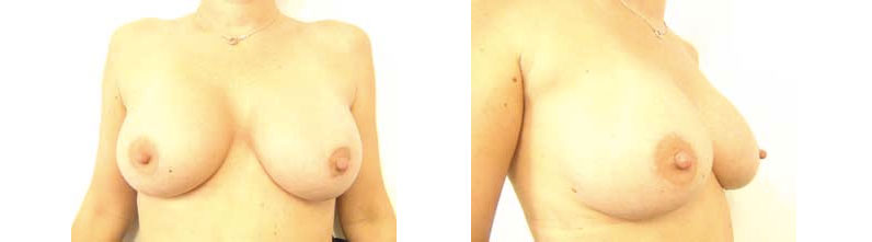 Yvette – Breast Augmentation – Real Story