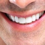Nose Job Recovery - What to Expect