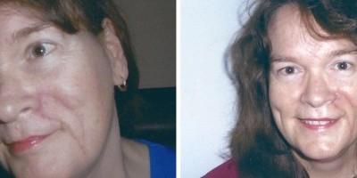 Loretta's Plastic Surgery Experience