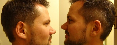 Michael – Rhinoplasty – Real Story