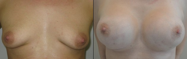 Renee – Tuberous Breasts – Real Story