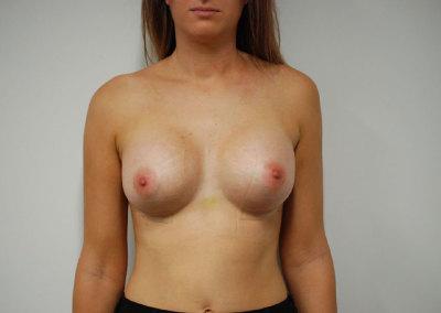 Belinda BA Surgery - after