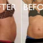 CoolSculpting 6 Week Post Treatment Before & After