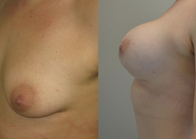 Renee's Breast Augmentation
