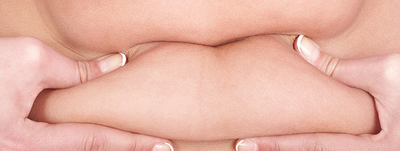 What Patients Should Know About Swelling After Tummy Tuck Surgery