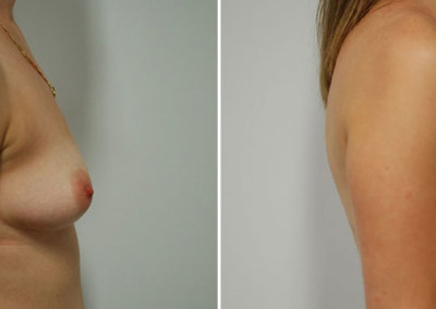 Belinda's Breast Augmentation