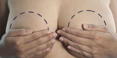 Breast Reduction Surgery (Reduction Mammoplasty)