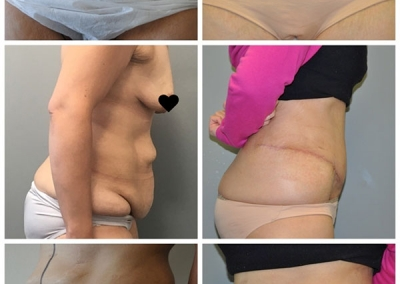 Abdominoplasty by Dr Ross Farhadieh