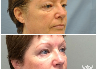 Blepharoplasty by Dr Ross Farhadieh