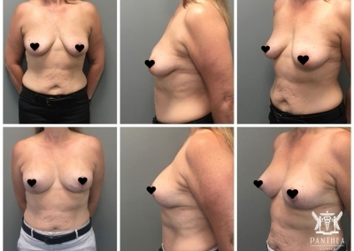 Breast Augmentation & Lift by Dr Ross Farhadieh