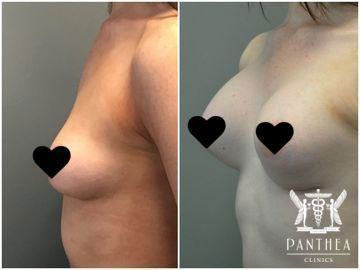 Breast Augmentation by Dr Ross Farhadieh