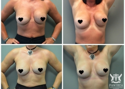 Breast Implant Revision by Dr Ross Farhadieh