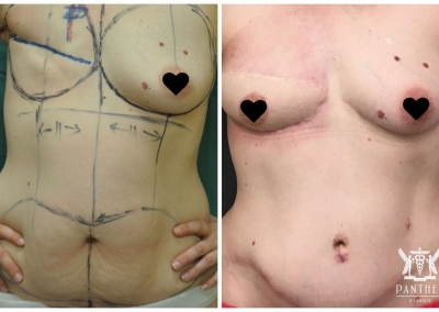 Breast Reconstruction by Dr Ross Farhadieh