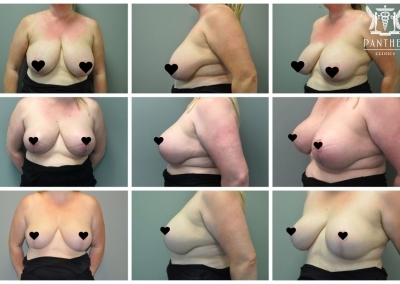Breast Reduction by Dr Ross Farhadieh