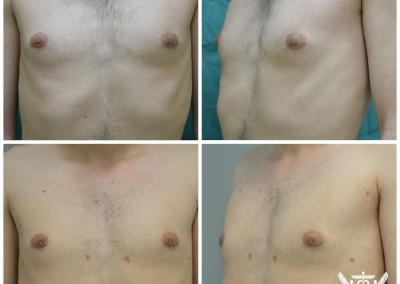 Gynaecomastia by Dr Ross Farhadieh
