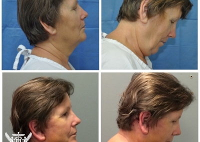 Neck & Lower Face Lift by Dr Ross Farhadieh