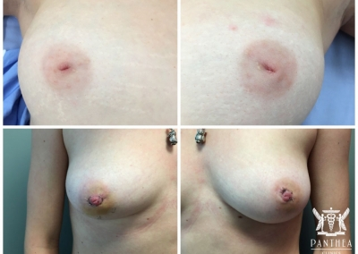 Inverted Nipple Correction by Dr Ross Farhadieh