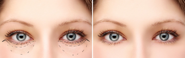 Blepharoplasty & Upper Facial Rejuvenation