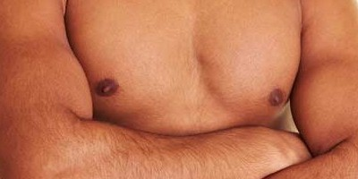 Male Breast Reduction (Gynaecomastia)