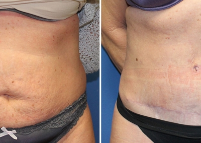 Abdominoplasty by Dr Damian Marucci