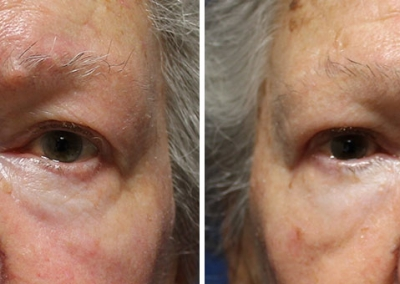 Blepharoplasty by Dr Damian Marucci