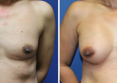 Breast Augmentation by Dr Damian Marucci
