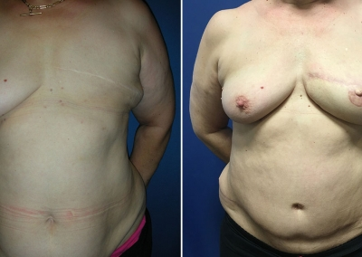 Breast Reconstruction by Dr Damian Marucci