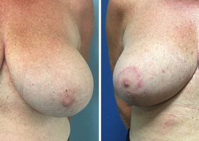 Breast Reduction by Dr Damian Marucci