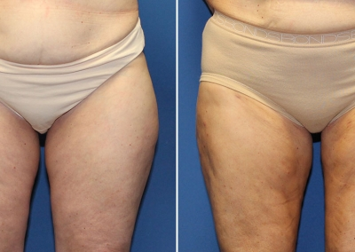 Liposuction by Dr Damian Marucci