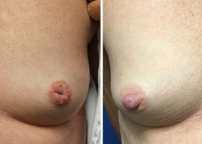 Inverted Nipple Correction by Dr Damian Marucci