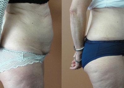 Patient 1 Abdominoplasty - side