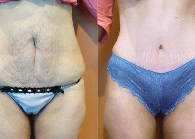 Patient 10 Abdominoplasty - front