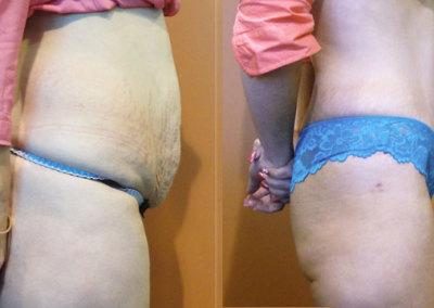 Patient 10 Abdominoplasty - side