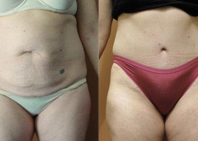 Patient 2 Abdominoplasty - front