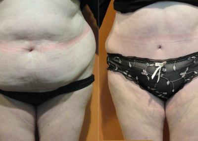 Patient 3 Abdominoplasty - front
