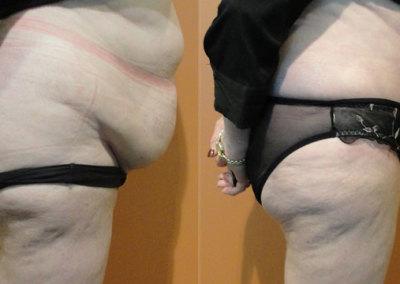 Patient 3 Abdominoplasty - side