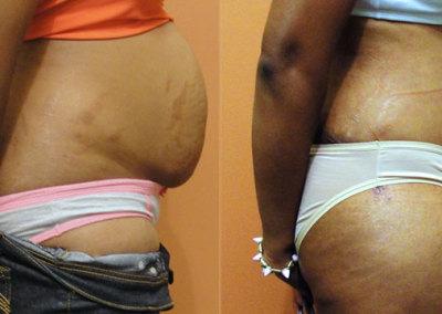 Patient 4 Abdominoplasty - side
