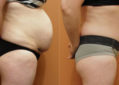 Patient 5 Abdominoplasty - side