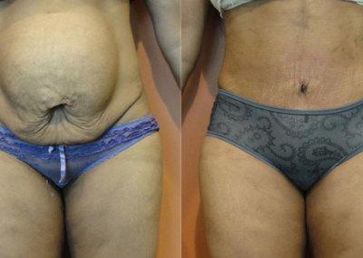 Patient 6 Abdominoplasty - front
