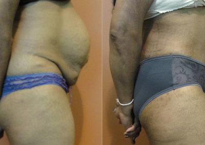 Patient 6 Abdominoplasty - side