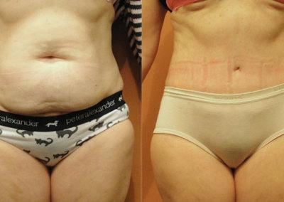 Patient 7 Abdominoplasty - front