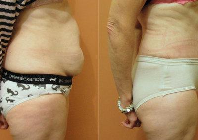Patient 7 Abdominoplasty - side
