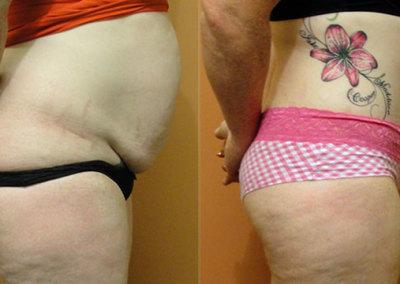 Patient 8 Abdominoplasty - side