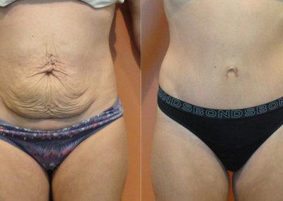 Patient 9 Abdominoplasty - front