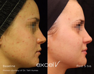 Excel V - Acne treatment