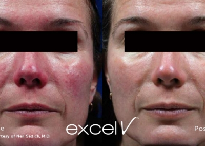 Excel V - Rosacea treatment