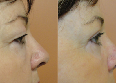 Patient 1 Blepharoplasty - side